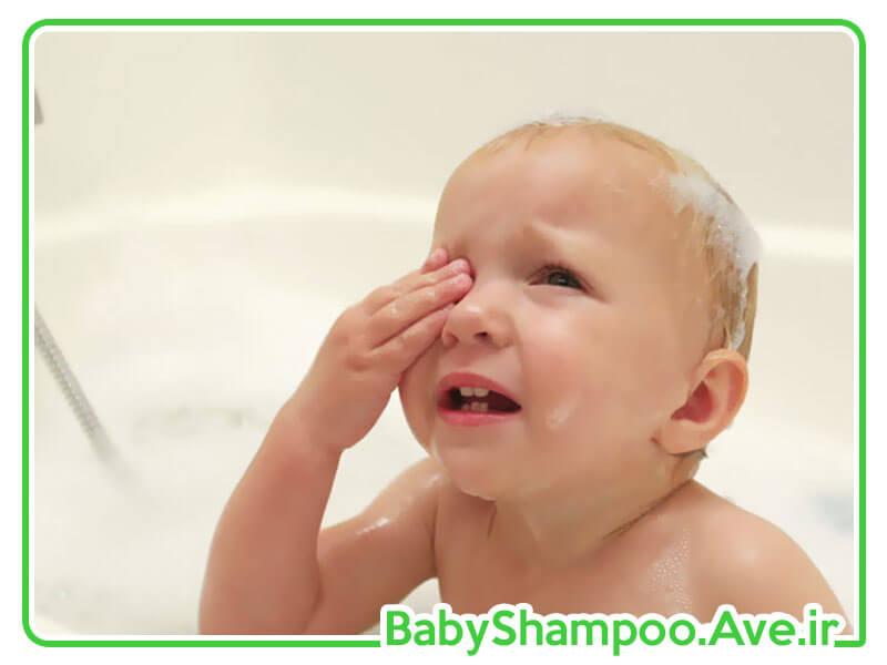 سوزش چشم کودک
